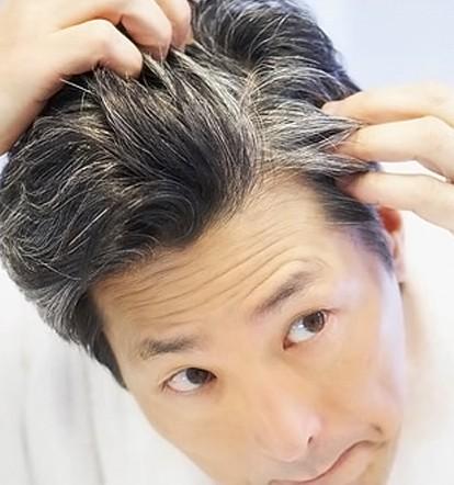 Αποκατάσταση Λευκών Μαλλιών